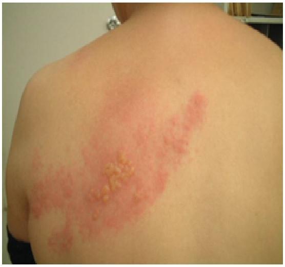 Il mal di schiena spara a un inguine