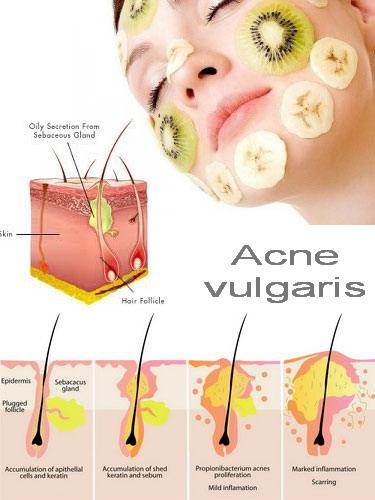 Acne, cibi In & Out