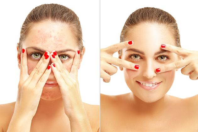 Le differenze tra acne lieve, moderata o grave