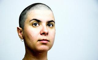 Ricrescita capelli uomo dopo chemio