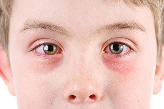 e02b814f40 Occhi e allergia al sole: le prospettive di cura | Malattie e ...