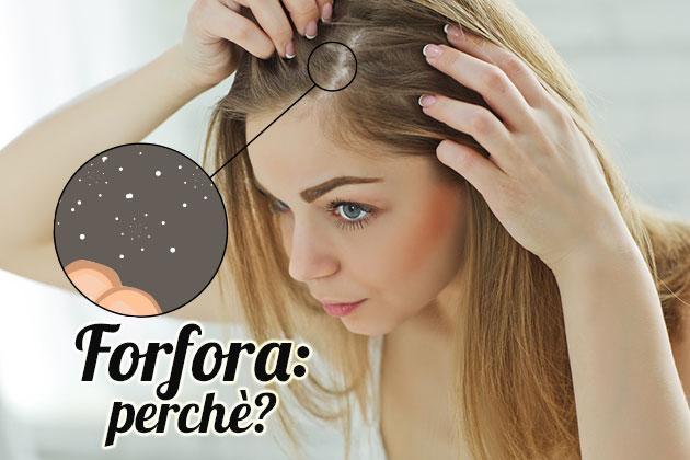 Caduta capelli donne forfora
