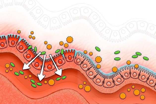 Sindrome dell'intestino gocciolante o leaky gut syndrome