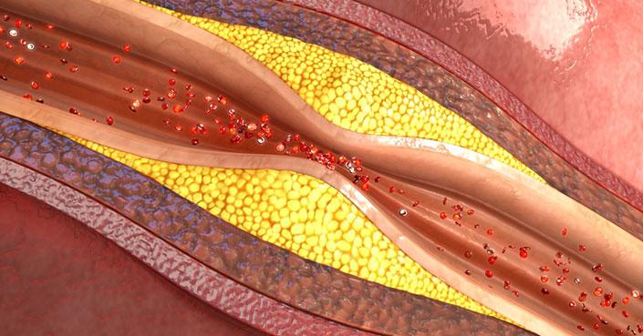 Sporgenza di dischi di una spina dorsale della ragione e il trattamento