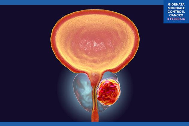 tumore alla prostata con metastasi in tutto il corpo il