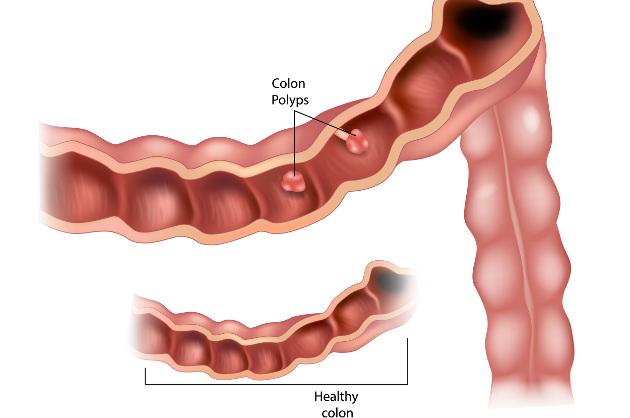 polipi al colon dieta