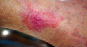Figure 8. Final closure of the lesion after 135 days of treatment.